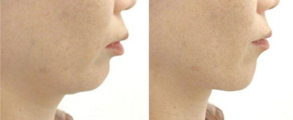 Kuwaete Sukkiri Tongue Exerciser: ginnastica facciale anti guance cadenti.