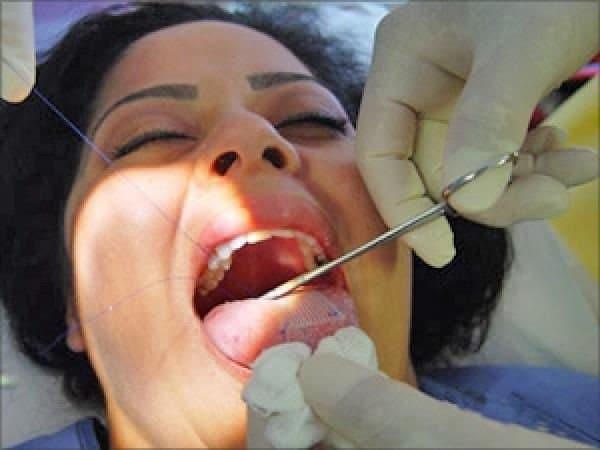 cerotto cucito sulla lingua
